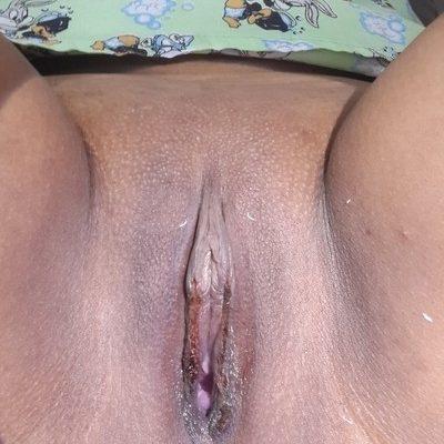 Labioplastia, lipotransferencia autologa, cirugía vaginal, relleno de labios, reducción de labios redundantes