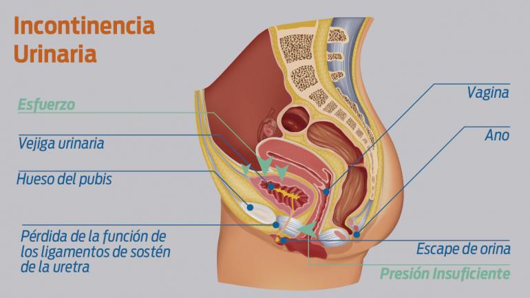 Tensado vaginal, Cirugía laser vaginal, rejuvenecimiento vaginal, Barquisimeto, Venezuela,